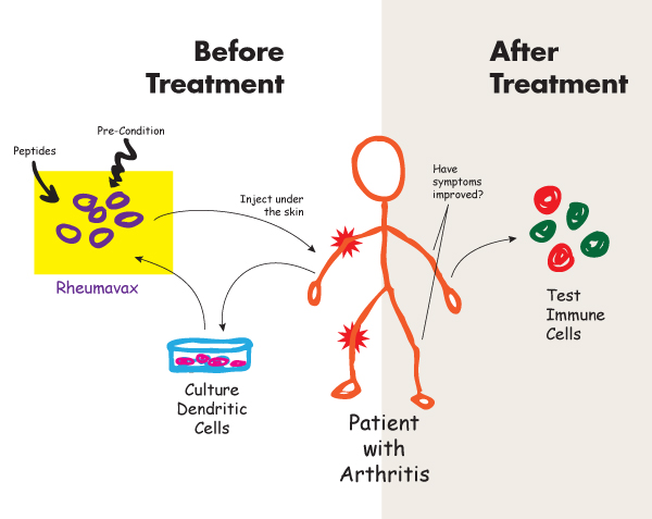 Preparation and delivery of Rheumavax to a patient with rhematoid arthritis.