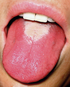 Strawberry tongue of Scarlet Fever.