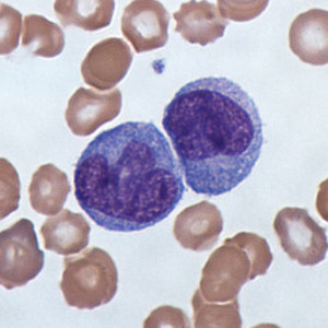 Micrograph of monocytes.